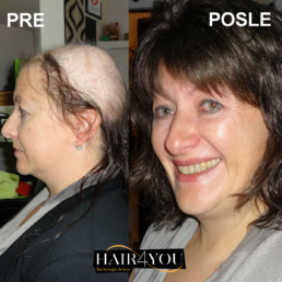 Rešenje za gubitak kose kod žena - Hair Micro System