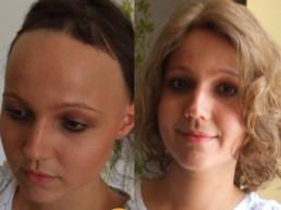 Rešenje za gubitak kose kod dece trakciona alopecija - Hair4You