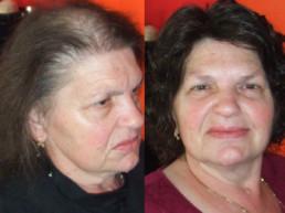 Trakciona alopecija rešenje HAIR4YOU