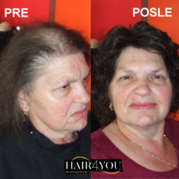Trakciona alopecija rešenje HAIR4YOU