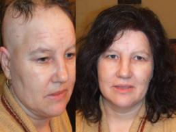 Alopecija totalis rešenje HAIR4YOU