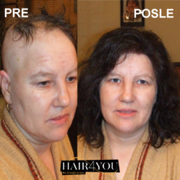 Alopecija totalis rešenje HAIR4YOU