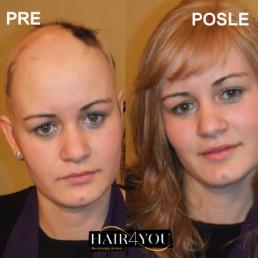 Alopecija totalis rešenje za gubitak kose kod žena - Hair Micro System
