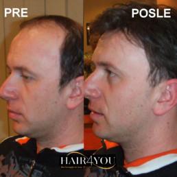 Androgena alopecija rešenje - Hair Micro System
