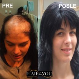 Ožiljna alopecija rešenje HAIR4YOU