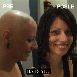 Alopecija totalis rešenje Hair Micro System