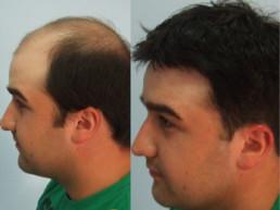 Ćelavost kod muškaraca, androgena alopecija