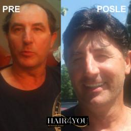 Androgena alopecija rešenje - HAIR4YOU
