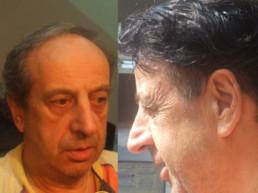 Hair Micro System - rešenje za naslednu ćelavost kod muškaraca