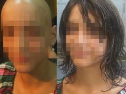 Rešenje za gubitak kose kod dece - Hair4You
