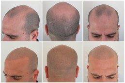 Scalp Micropigmentation - HAIR4YOU