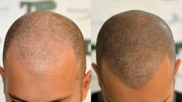 Scalp Micropigmentation - HAIR4YOU