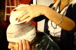 Hair Micro System - Vlasni sistem - rešenje za gubitak kose - HAIR4YOU