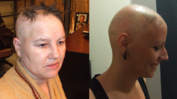 Alopecija totalis - HAIR4YOU