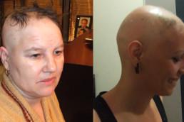 Alopecija totalis - HAIR4YOU