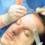 Razlika između transplatacije kose i Hair Micro Sistema