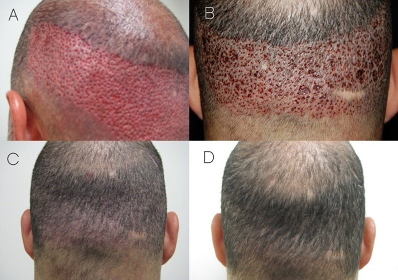 transplatacija kose - HAIR4YOU