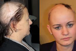 Gubitak kose kod žena - HAIR4YOU